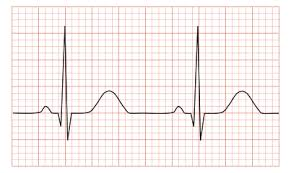Is it a normal sinus rhythm or me riding the Huckleberry Trail?